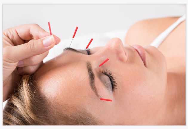 Acupuncture for Immune Health